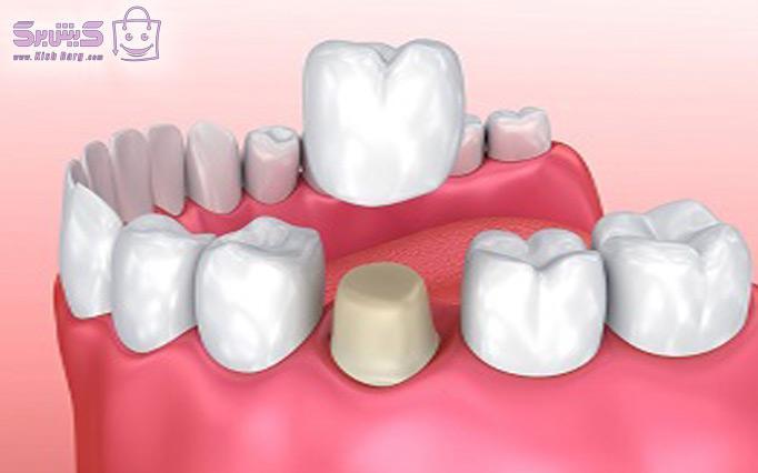 روکش دندان مطب دکتر رفیعی پور