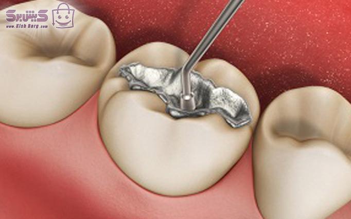ترمیم دندان مطب دکتر رفیعی پور